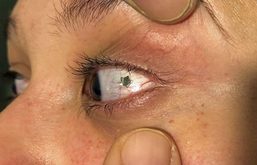 Photo of زیورات جنہیں آنکھوں کے ''اندر'' پہنا جاسکتا ہے