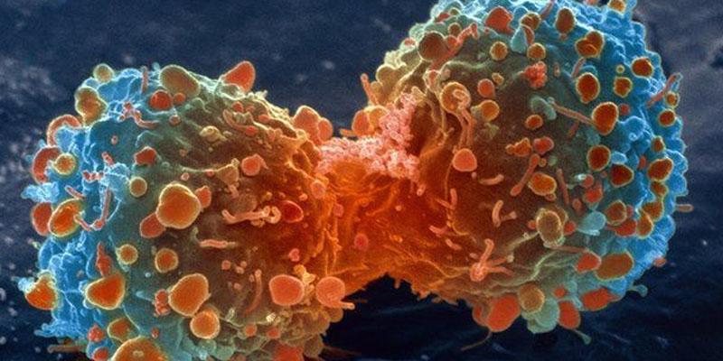 Photo of کینسر جیسی خطرناک بیماری سے عمر بھر کیلئے بچنا چاہتے ہیں تو روزانہ رات کو یہ ایک کام ضرور کریں،طبی ماہرین نے نادر نسخہ بتادیا،حیرت انگیز انکشافات