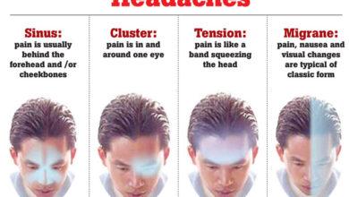 Photo of سردرد کی 4 اقسام اور علاج